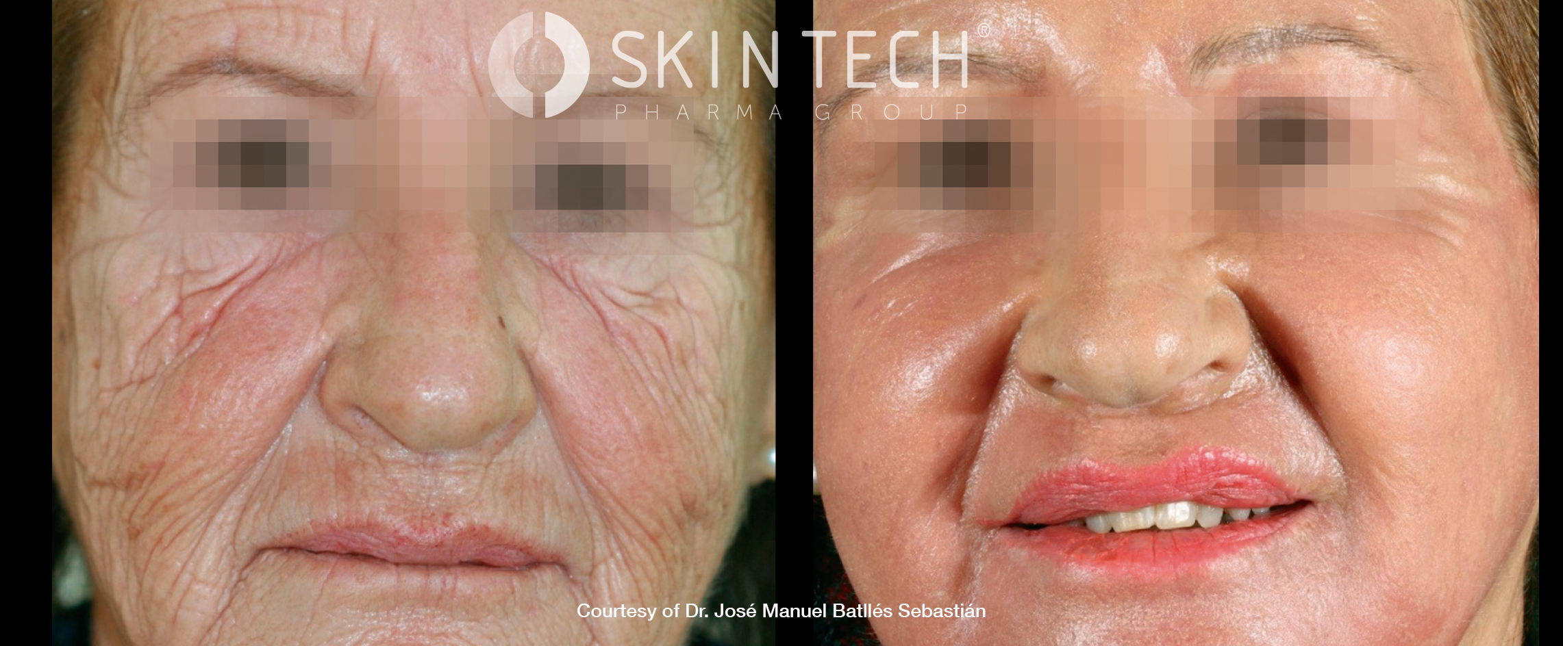 Full Face Rejuvenation Result 2