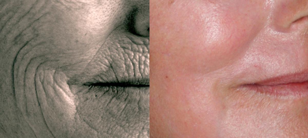 Full Face Rejuvenation Result